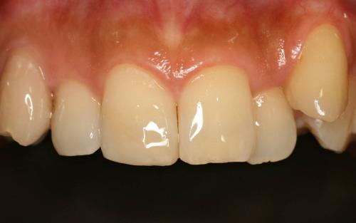 レジンで欠けた前歯を修復
