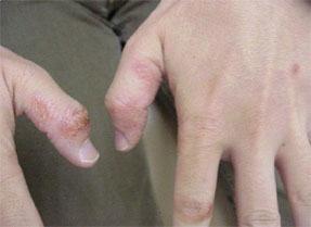 掌蹠膿疱症2